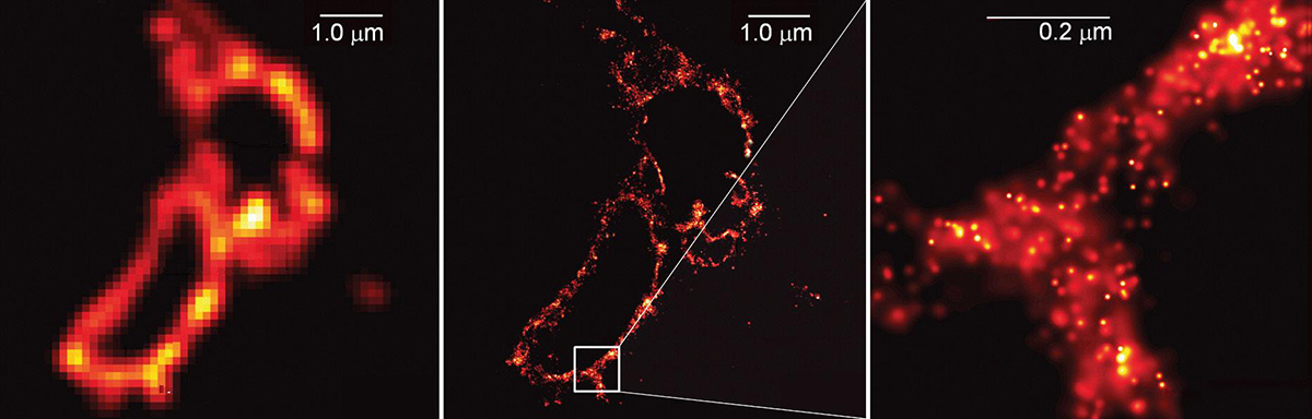 These images all show the same lysosome membranes. Left, an image made via conventional microscopy. Center, an early image made by Betzig using his new method. Right, an enlarged version, with the scale marking of 0.2 microns indicating the Abbe limit. From Science 313: 1642–1645.